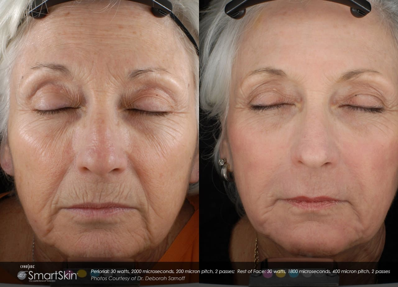 Get A Brand New Skin SmartSkin Co2 Fractional Resurfacing In Seattle At Well Medical Arts
