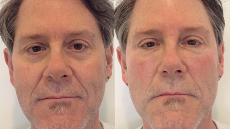 Bellafill Tear Trough Treatment To Reduce The Appearance Of Black Bags Under The Eyes. Call Well Medical Arts In Seattle At 206-935-5689 To Schedule Your Consultation.