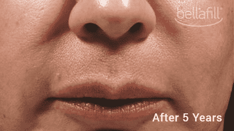 Trust An Expert Injector To Use Bellafill, The Longest Lasting Most Cost Effective Filler. Call Well Medical Arts At 206-935-5689 To Schedule Your Consultation.