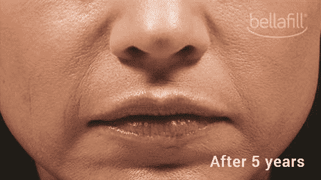 Bellafill Is The Longest Lasting Most Cost Effective Filler. Call Well Medical Arts At 206-935-5689 To Schedule Your Consultation.