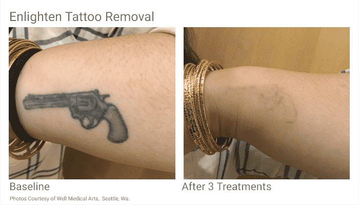Seattle Tattoo Removal Cutera Enlighten Before After VP 2 Treatments
