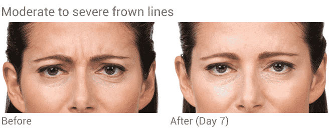 Well Medical Arts Offers The Best Botox Treatments In Seattle.