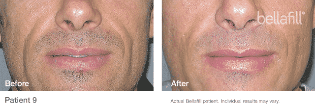 We Are A Seattle Bellafill Top 1% Provider. Bellafill Is The Longest Lasting Dermal Filler Available With The Longest Safety Study Of Any Dermal Filler On The Market. Bellafill Is A Semi-permanent Dermal Filler That Lasts Up To 5 Years! Yes 5 Years!
