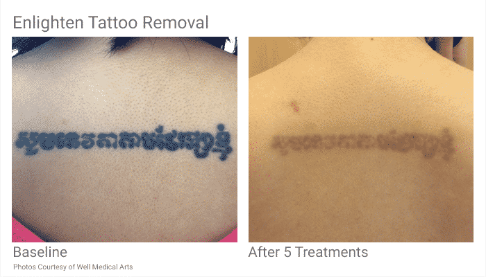 Laser hair removal seattle laser tattoo removal seattle for Dallas tattoo removal clinic reviews