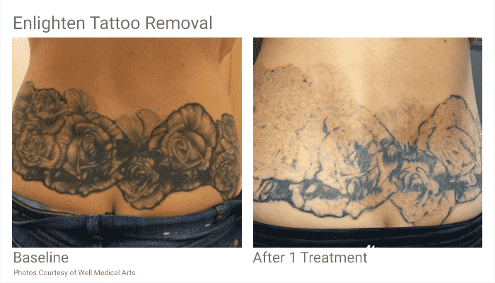 tattoo removal in seattle at well medical arts