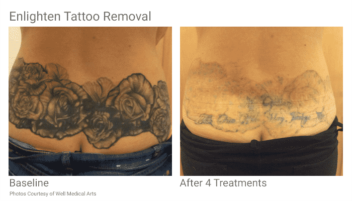 Tattoo Removal In Seattle Just Became Easier. With Pico Technology At ...