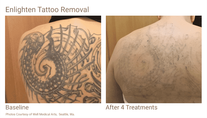 Seattle Tattoo Removal At Well Medical Arts With The Cutera Enlighten Using Picosecond Technology.