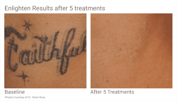 Tattoo Removal In Seattle Just Became Easier. With Pico Technology At Well Medical Arts We Can Remove All Colors Of Tattoos On All Skin Types In Half The Time.