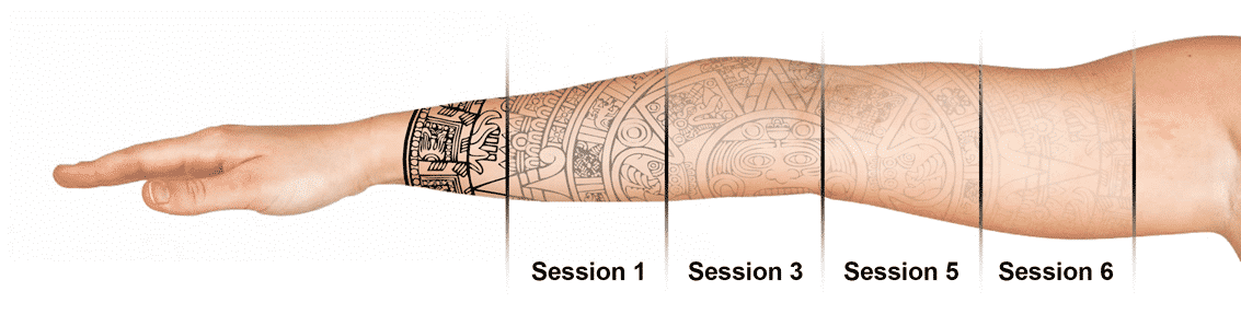The stages of Seattle Laser Tattoo Removal. Call Well Medical Arts at 206-935-5689 to schedule your complimentary consultation or visit http://www.wellmedicalarts.com/tattoo-removal/ to learn more.