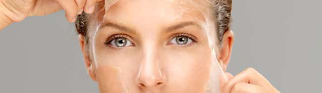 chemical-peel-