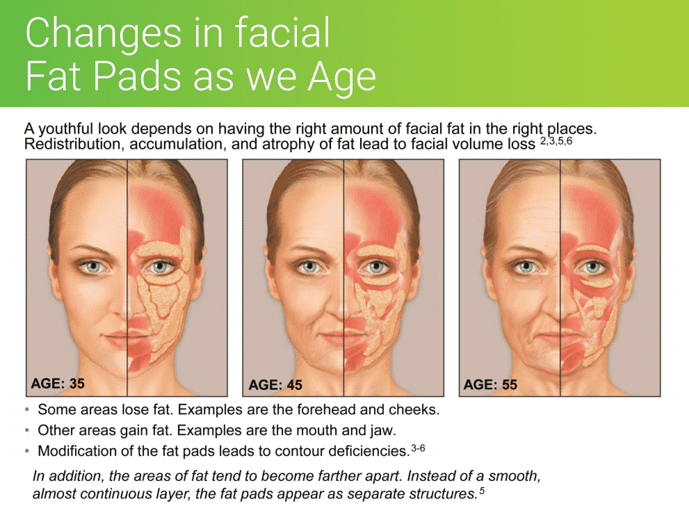 Changes in facial fat pads as we age contribute to a sagging face. When we replace the lost volume of fat with dermal fillers we can restore a more youthful appearance.