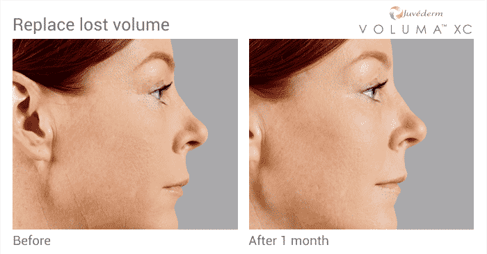 JuvedermVoluma BeforeandAfter MaryAnneSide