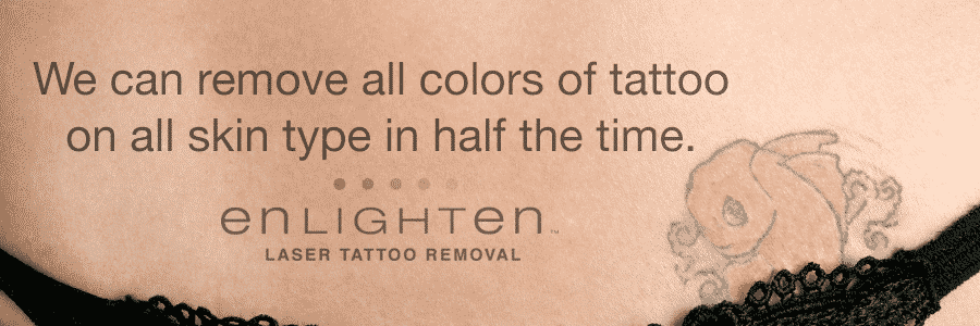 Tattoo Removal Seattle
