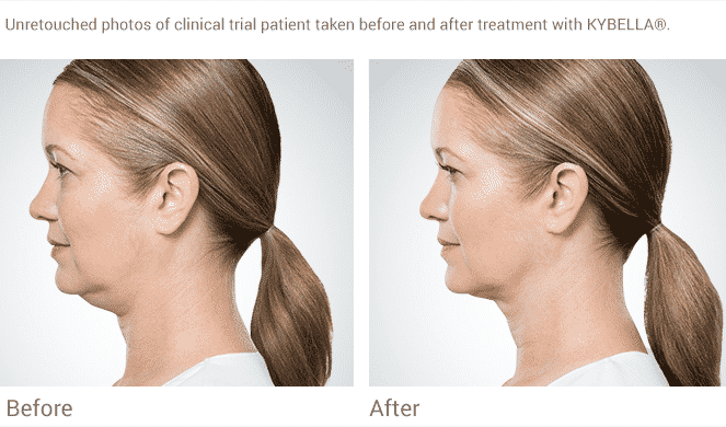 Seattle Kybella At Well Medical Arts. Kybella Is The New Injectable That Permanently Dissolves Fat With A Quick Non-invasive Procedure Providing Contour To The Lower Face And Jawline.