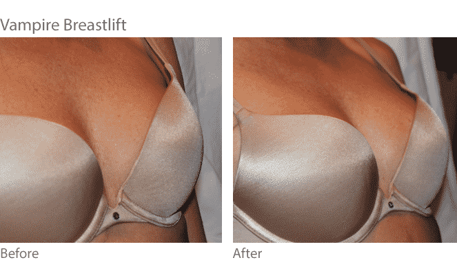 Boob lift before and after photos should help