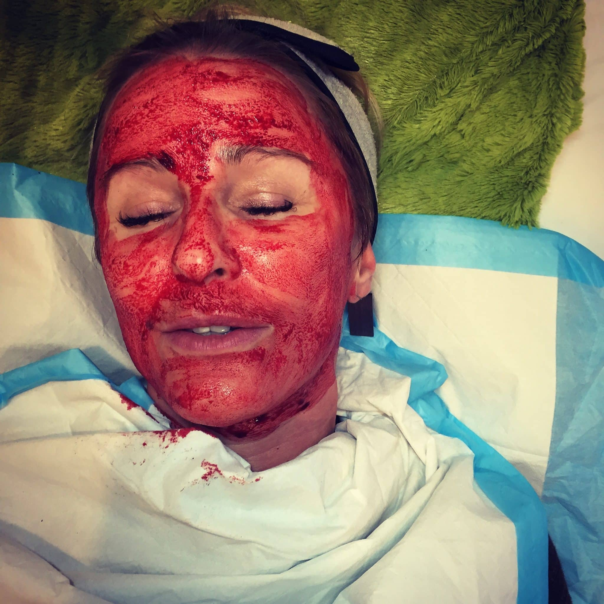 Dominique undergoing the Vampire Facial in Seattle. The vampire facial is MicroNeedling with Platelet Rich Plasma (PRP) applied topically.