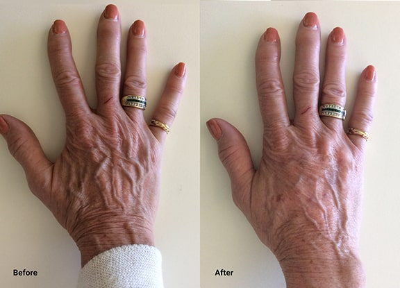 Radiesse Hands Before After Seattle WellMedicalArts R Low