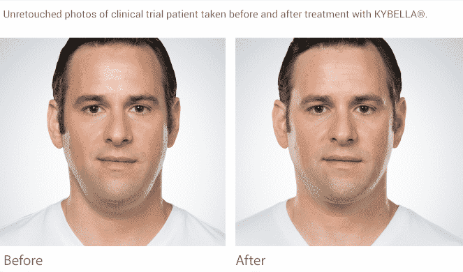 Kybella Seattle WellMedicalArts BeforeAfter MEN 1