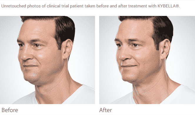 Eliminate The Double Chin In Seattle With Kybella At Well Medical Arts