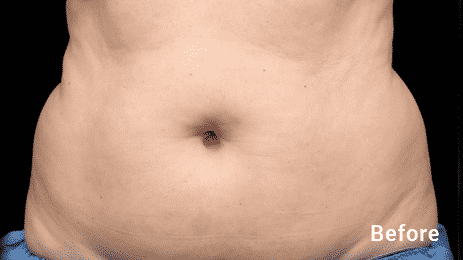 Seattle Coolsculpting Belly Abdomen Before After WOMEN 1