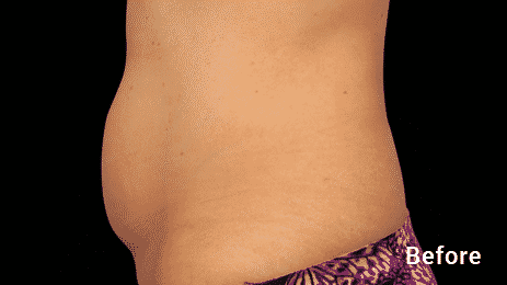 Get Rid Of That Stubborn Belly Fat With Our Seattle Coolsculping Treatments. Coolsculpting Is The #1 Non Invasive Fat Reduction Treatment. Call 206-935-5689 To Schedule Your Consultation.
