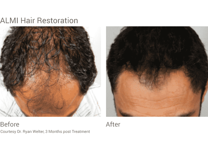 Almi Procedure Hair Restoration Seattle