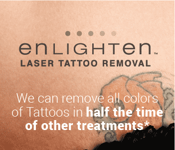 Seattle TattooRemoval LaserTattooRemoval Pico WellMedicalArts