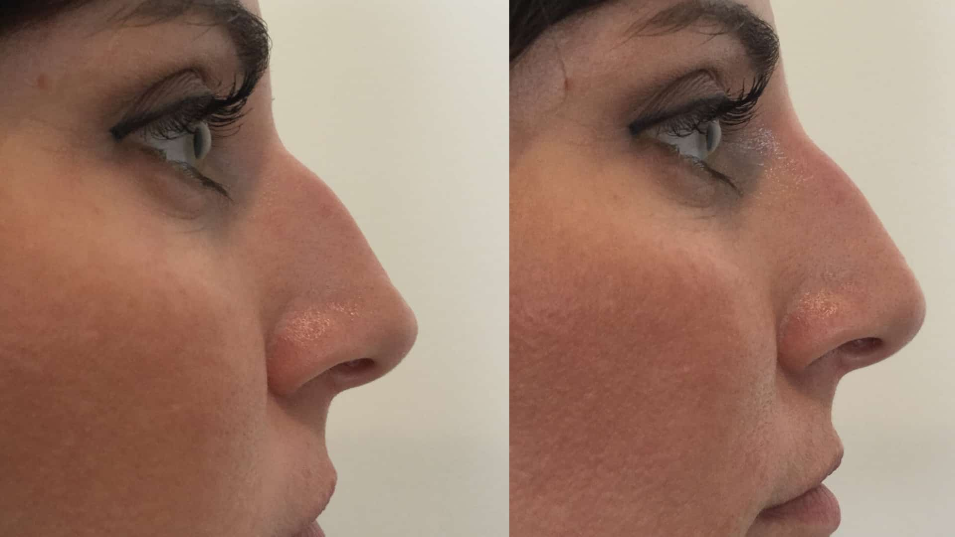 Seattle Non Surgical Rhinoplasty At Well Medical Arts