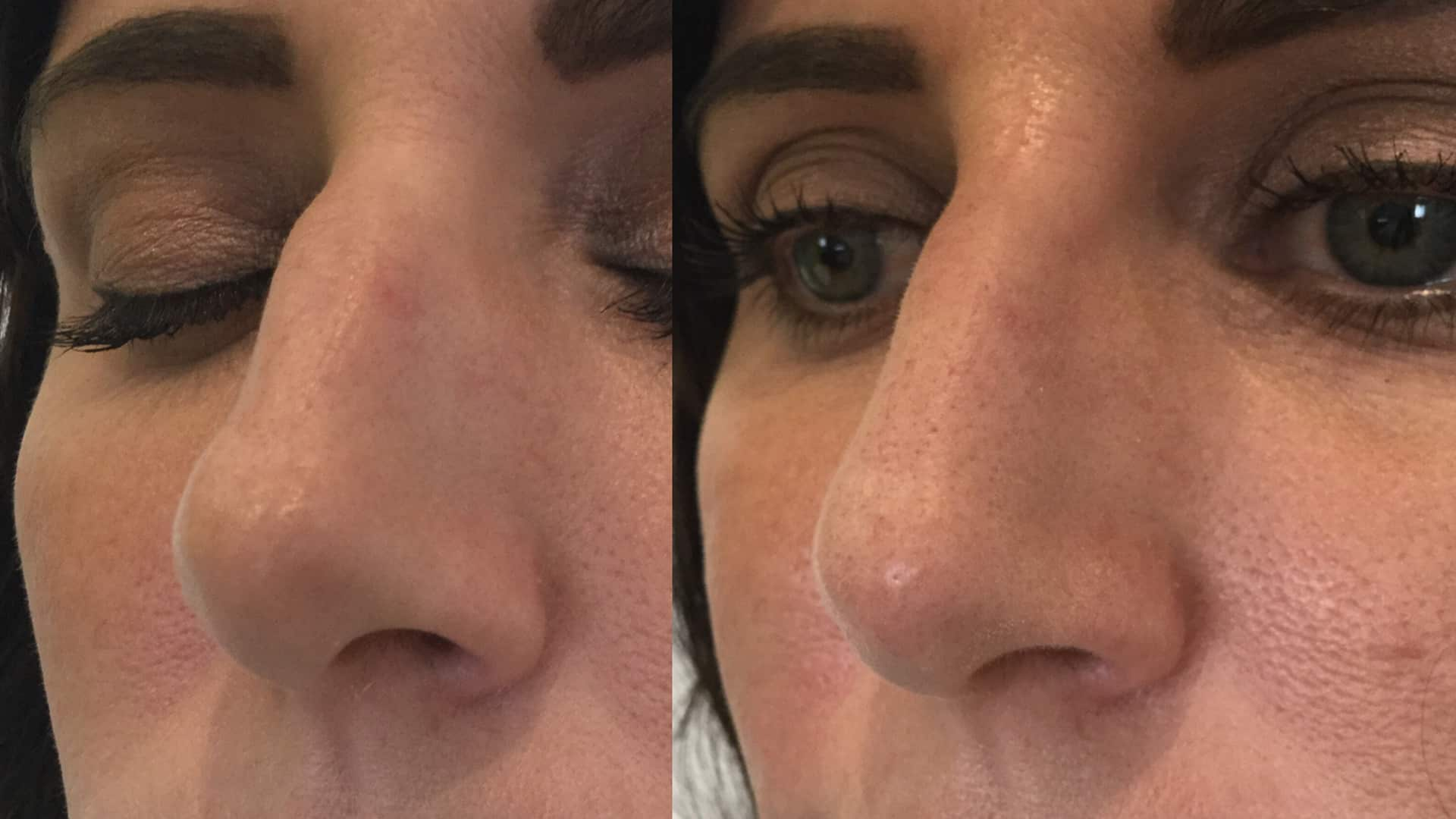 Seattle Non-Surgical Nose Job