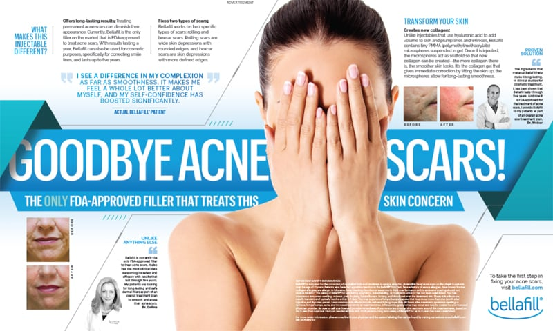 Say goodbye to acne scars with our Seattle Bellafill Acne Scar treaments.