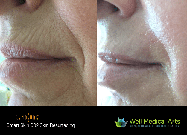 Seattle Co2 Fractional Laser Treatments At Well Medical Arts. Erase Years Worth Of Fine Lines From Your Face. Treat Scars And Sebaceous Hyperplasia. Call Well Medical Arts At 206-935-5689 To Schedule Your Consultation.