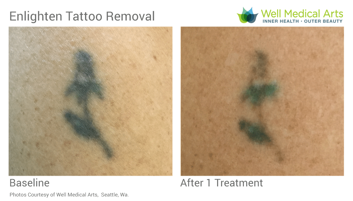 2nd Treatment Session Of Laser Tattoo Removal In Seattle On A Small Tattoo At Well Medical Arts.