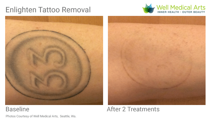 Tattoo Removal Seattle Cutera Enlighten Before After 2 SP