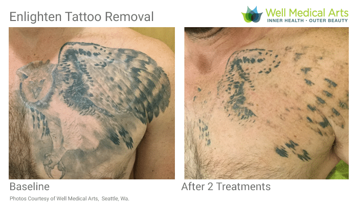 Tattoo Removal Seattle Cutera Enlighten Before After M M 2tx