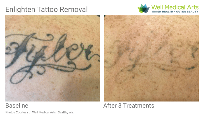 Tattoo Removal In Seattle At Well Medical Arts. Call 206-935-5689 To Schedule Your Consultation.