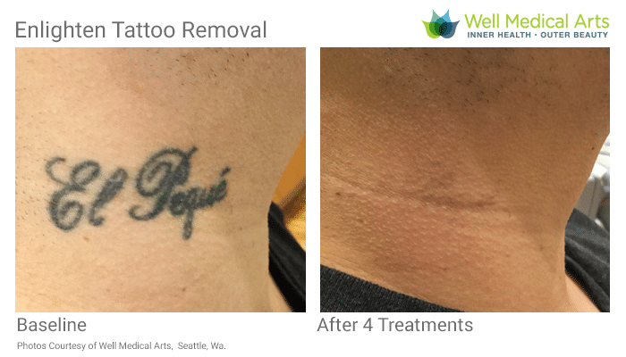 Tattoo Removal Seattle Pico Cutera Enlighten Before After Rod V