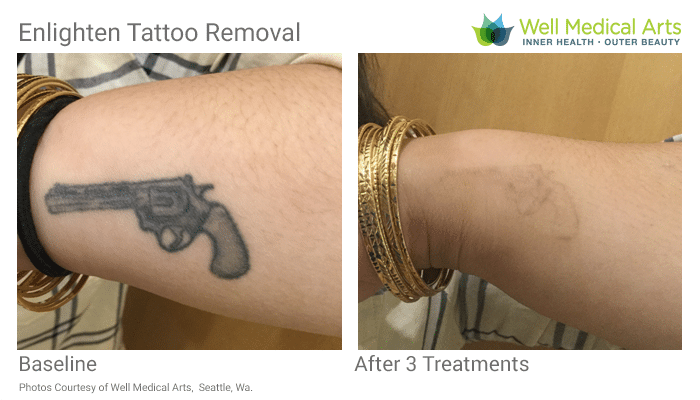 More Awesome Laser Tattoo Removal Results In Seattle At Well Medical Arts. Call 206-935-5689 To Schedule Your Consultation.